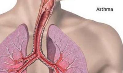 astmul bronsic alergic