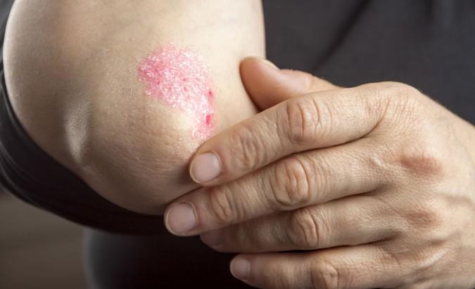 artrita acutab