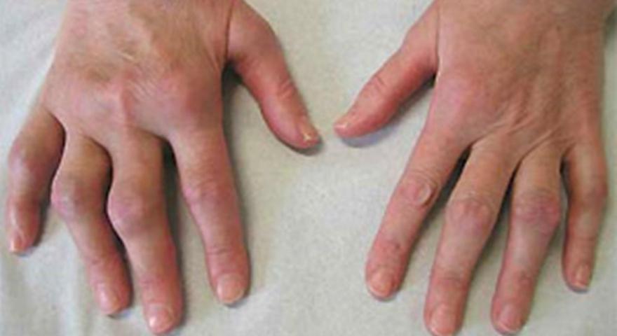 Poliartrita reumatoida imagini