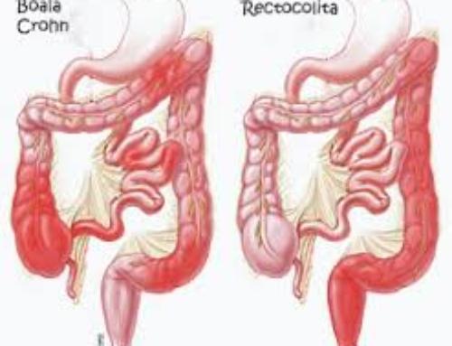 Rectocolită hemoragică