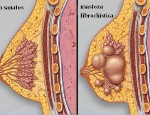 Mastopatie, noduli mamari (noduli la san)