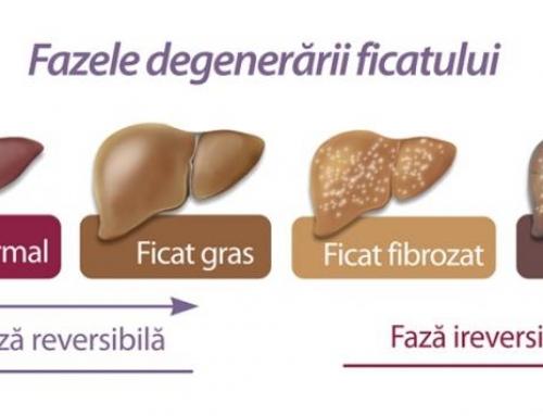 Tratament naturist pentru hepatita B