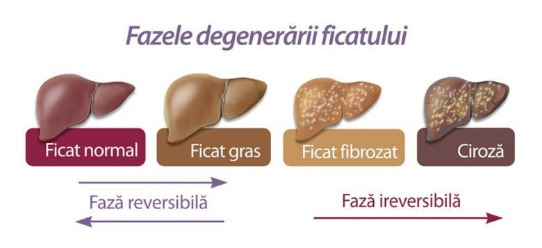 HEPATITA B DR RARES SIMU