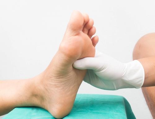 Remedii eficiente pentru picioarele fierbinți